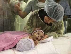 Саудовские врачи успешно разделили сиамских близнецов Сафу и Марву