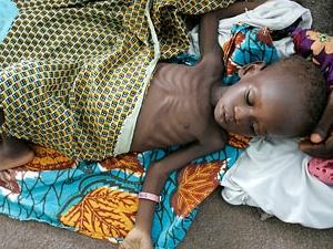Сегодня от голода и болезней в мире умерло 24000 детей до пяти лет