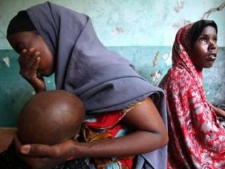 Голод в Сомали: ОИС бьет тревогу