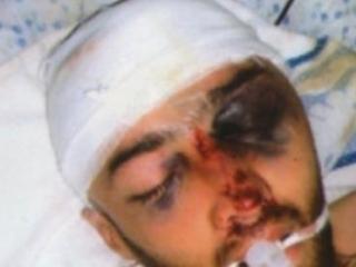 Таджикского юношу убили не пытками, а халатным отношением