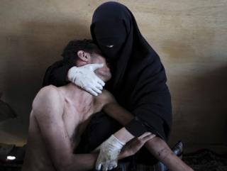 """На """"Фото года"""" запечатлена женщина в никабе, прижимающая к себе раненого мужа. Работа была сделана в столице Йемена г.Сане"""