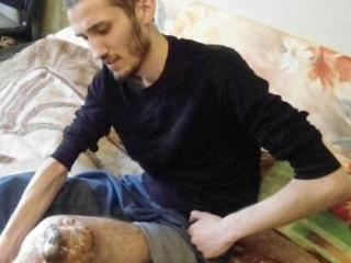 В Тверской области осужденного с 4 степенью рака досрочно освободили из колонии