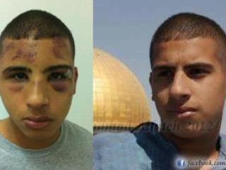 В Иерусалиме жестоко избит палестинский ребенок (ВИДЕО)