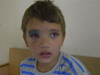 Бойцовская собака покалечила 10-летнего Малика