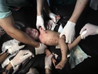 В секторе Газа стремительно растет количество раненых и погибших