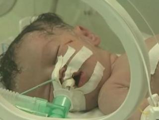 Врачам удалось извлечь ребенка из убитой израильтянами палестинки