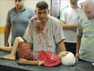 Ребенок, изувеченный в результате очередного израильского налета на сектор Газа. Фото: Аль-Джазира