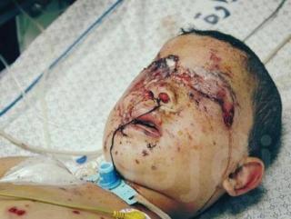 Палестинский мальчик получил ожоги и многочисленные травмы в результате израильских бомбардировок в Газе