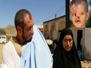 Ребенку без лица сделают операцию благодаря мусульманке (ФОТО)