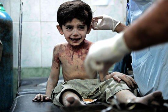 Раненный сирийский мальчик