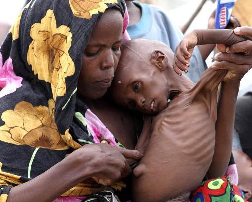 В Сомали снова умирают от голода дети