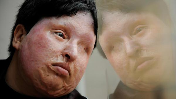 Одна из жертв кислоты в Иране