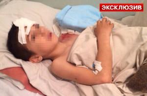Дагестанскому мальчику медведь откусил руку