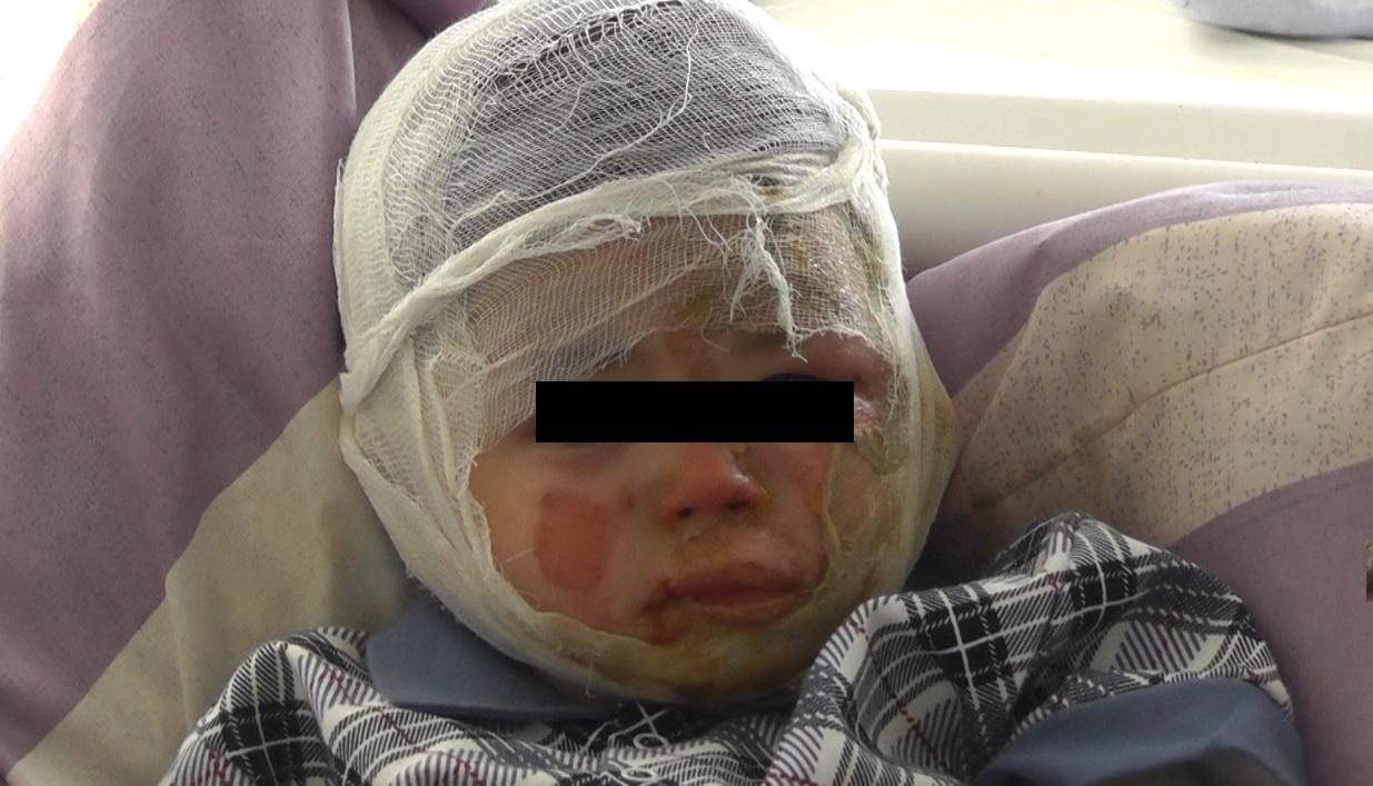 Двухлетний ребенок пострадал от рук коллекторов