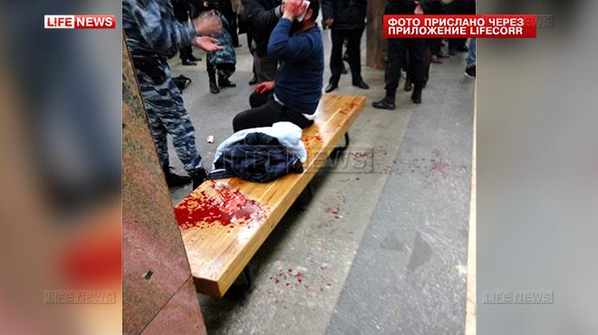 Раненый гражданин Таджикистана скорее всего останется с одним глазом