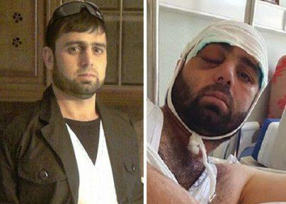 Раненный в метро Москвы таджик остался инвалидом