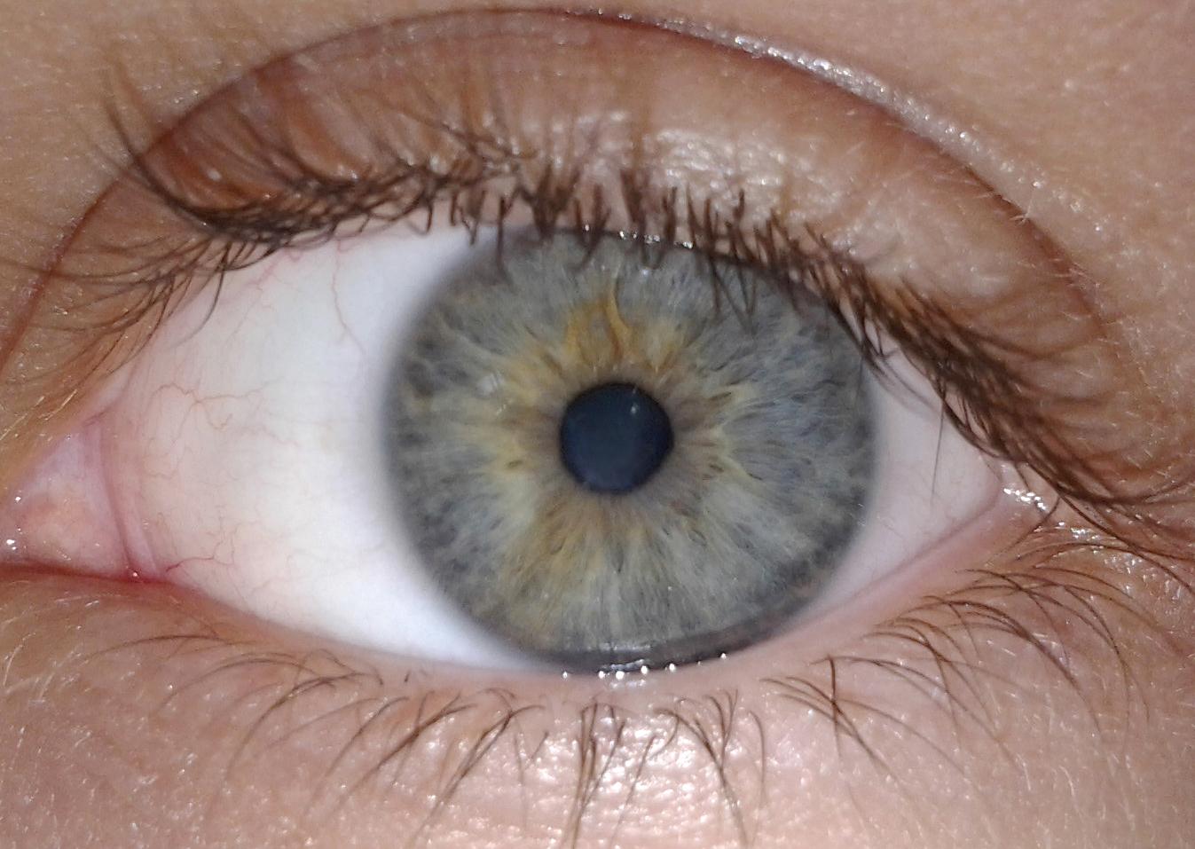 Качественное лечение катаракты в кельнской клинике «Ам Ноймаркт»