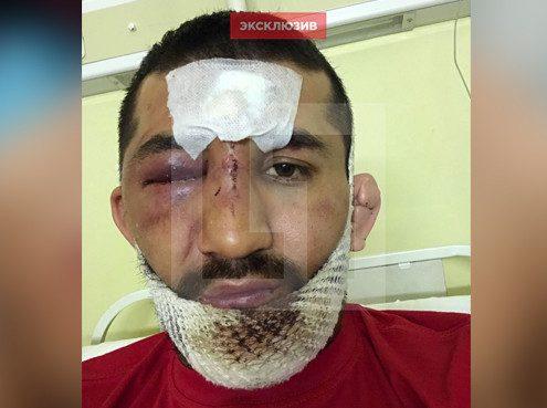 Размещены кадры избитого дагестанцами солдата Расула Мирзаева