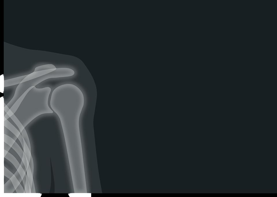 Необходимость своевременной диагностики болезней суставов