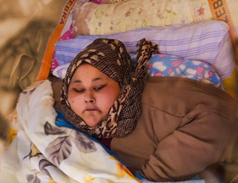 Египтянка весом полтонны чудом вернулась к жизни