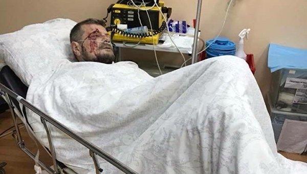 Раненного Мосийчука прооперировали после взрыва