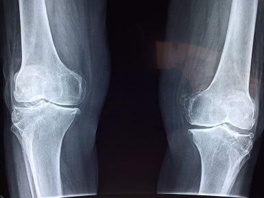 Современный гель для лечения болей в суставах