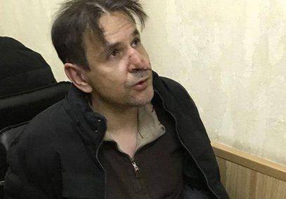 Мужчина, полоснувший ножом журналистку «Эха Москвы», дает показания