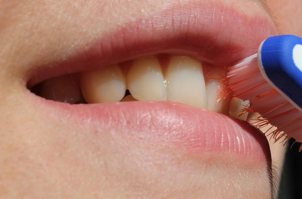 Брекеты – выгодное решение проблемы искривленных зубов