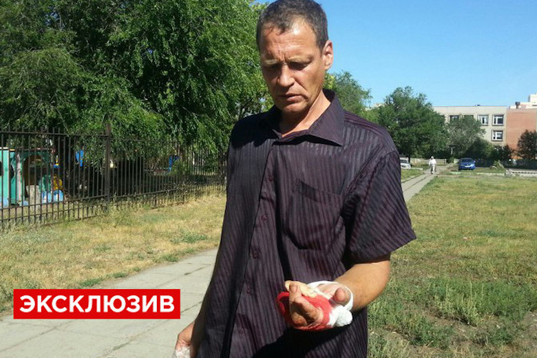 Игорь Губанов отрезал себе пальцы, требуя правосудия