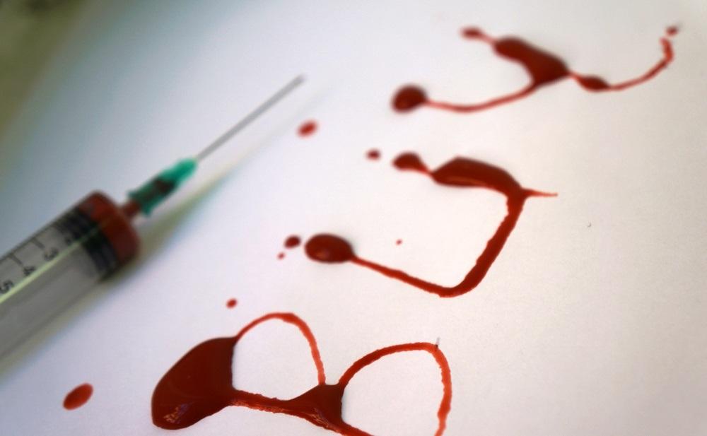 Минздрав предупредил о пугающей ситуации с ВИЧ в Москве