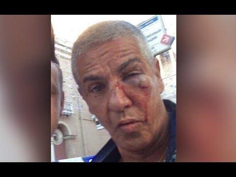Изувеченному в центре Москвы Насери пришлось спасать глаз