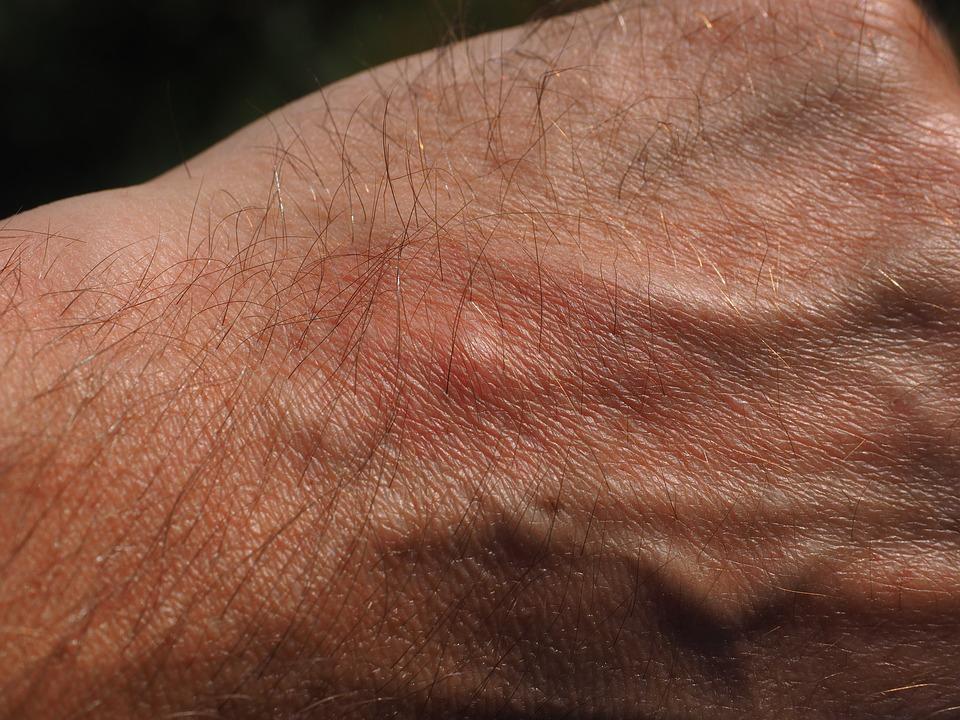 В какую клинику обратиться для лечения псориаза?