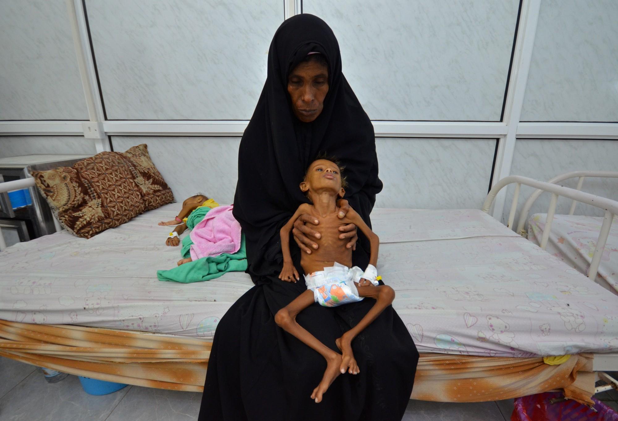 Жительница Йемена держит на руках истощенного малыша
